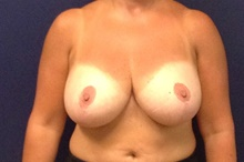 Breast Reduction Before Photo by Tommaso Addona, MD; Garden City, NY - Case 41417
