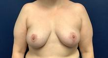 Breast Reconstruction After Photo by Tommaso Addona, MD; Garden City, NY - Case 42517