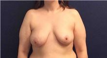 Breast Reconstruction Before Photo by Tommaso Addona, MD; Garden City, NY - Case 42517