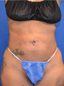 Liposuction After Photo by Jon Ver Halen, MD; Colleyville, TX - Case 33045