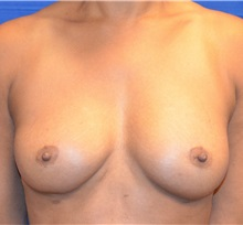 Breast Lift After Photo by Jon Ver Halen, MD; Colleyville, TX - Case 33543