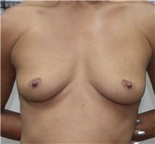 Breast Lift Before Photo by Jon Ver Halen, MD; Colleyville, TX - Case 33543