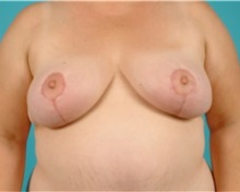Breast Lift After Photo by Jon Ver Halen, MD; Colleyville, TX - Case 33544