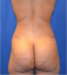 Buttock Lift with Augmentation After Photo by Jon Ver Halen, MD; Colleyville, TX - Case 33667