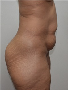 Buttock Lift with Augmentation Before Photo by Jon Ver Halen, MD; Colleyville, TX - Case 33667