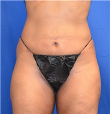Liposuction After Photo by Jon Ver Halen, MD; Colleyville, TX - Case 33717