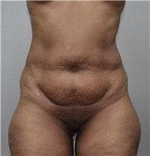 Liposuction Before Photo by Jon Ver Halen, MD; Colleyville, TX - Case 33717