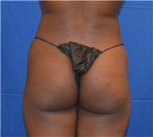 Liposuction Before Photo by Jon Ver Halen, MD; Colleyville, TX - Case 33945