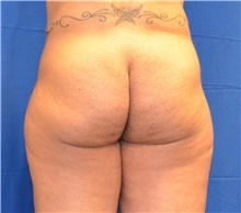 Buttock Lift with Augmentation Before Photo by Jon Ver Halen, MD; Colleyville, TX - Case 33996