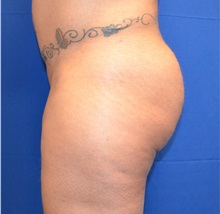 Buttock Lift with Augmentation After Photo by Jon Ver Halen, MD; Colleyville, TX - Case 33996