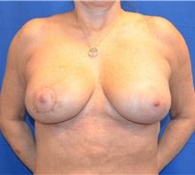 Breast Augmentation After Photo by Jon Ver Halen, MD; Colleyville, TX - Case 35238