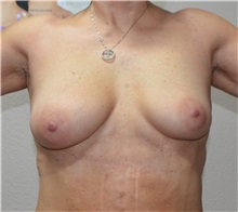 Breast Augmentation Before Photo by Jon Ver Halen, MD; Colleyville, TX - Case 35238