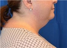 Liposuction Before Photo by Jon Ver Halen, MD; Colleyville, TX - Case 35344