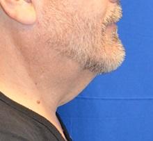 Liposuction Before Photo by Jon Ver Halen, MD; Colleyville, TX - Case 35348