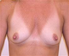 Breast Augmentation Before Photo by Brooke Seckel, MD; Concord, MA - Case 27435