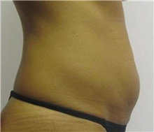 Tummy Tuck Before Photo by Brooke Seckel, MD; Concord, MA - Case 27437