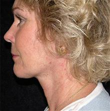 Facelift After Photo by Brooke Seckel, MD; Concord, MA - Case 27474