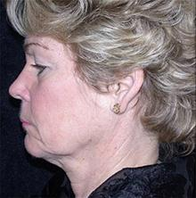 Facelift Before Photo by Brooke Seckel, MD; Concord, MA - Case 27474