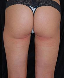 Liposuction After Photo by Brooke Seckel, MD; Concord, MA - Case 27475