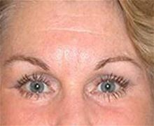 Eyelid Surgery After Photo by Brooke Seckel, MD; Concord, MA - Case 27477