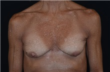 Breast Implant Removal After Photo by Landon Pryor, MD, FACS; Rockford, IL - Case 37682