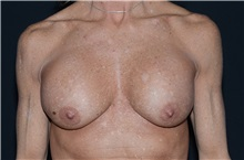 Breast Implant Removal Before Photo by Landon Pryor, MD, FACS; Rockford, IL - Case 37682