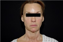 Facelift Before Photo by Landon Pryor, MD, FACS; Rockford, IL - Case 37695