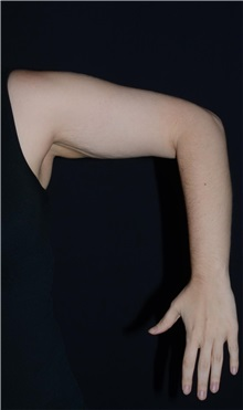 Arm Lift Before Photo by Landon Pryor, MD, FACS; Rockford, IL - Case 37697