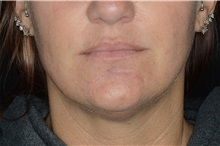 Dermal Fillers After Photo by Landon Pryor, MD, FACS; Rockford, IL - Case 37698
