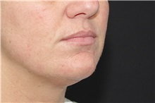Dermal Fillers Before Photo by Landon Pryor, MD, FACS; Rockford, IL - Case 37698