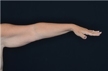 Arm Lift Before Photo by Landon Pryor, MD, FACS; Rockford, IL - Case 37703