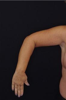 Arm Lift After Photo by Landon Pryor, MD, FACS; Rockford, IL - Case 37703