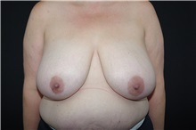 Breast Reduction Before Photo by Landon Pryor, MD, FACS; Rockford, IL - Case 37704