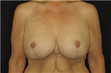 Breast Reduction After Photo by Landon Pryor, MD, FACS; Rockford, IL - Case 37713