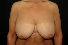 Breast Reduction Before Photo by Landon Pryor, MD, FACS; Rockford, IL - Case 37713