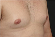 Male Breast Reduction Before Photo by Landon Pryor, MD, FACS; Rockford, IL - Case 37737