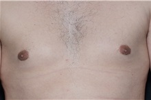 Male Breast Reduction After Photo by Landon Pryor, MD, FACS; Rockford, IL - Case 37737