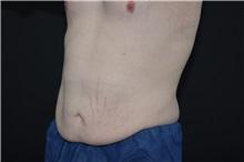 Tummy Tuck Before Photo by Landon Pryor, MD, FACS; Rockford, IL - Case 37759