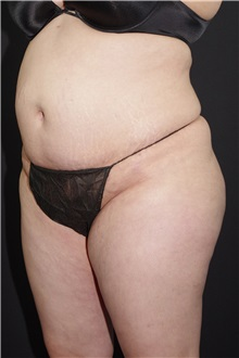 Buttock Lift with Augmentation After Photo by Landon Pryor, MD, FACS; Rockford, IL - Case 37963