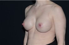 Breast Augmentation After Photo by Landon Pryor, MD, FACS; Rockford, IL - Case 37964