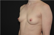 Breast Augmentation Before Photo by Landon Pryor, MD, FACS; Rockford, IL - Case 37964