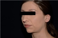 Rhinoplasty Before Photo by Landon Pryor, MD, FACS; Rockford, IL - Case 37968