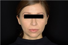 Rhinoplasty After Photo by Landon Pryor, MD, FACS; Rockford, IL - Case 37968