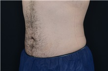 Liposuction After Photo by Landon Pryor, MD, FACS; Rockford, IL - Case 37974