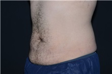 Liposuction Before Photo by Landon Pryor, MD, FACS; Rockford, IL - Case 37974