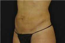 Liposuction After Photo by Landon Pryor, MD, FACS; Rockford, IL - Case 38149