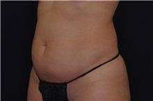 Liposuction Before Photo by Landon Pryor, MD, FACS; Rockford, IL - Case 38149