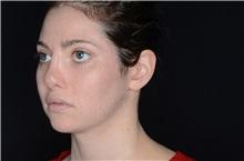 Ear Surgery Before Photo by Landon Pryor, MD, FACS; Rockford, IL - Case 38150