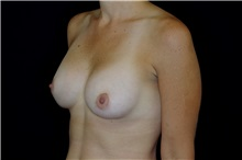 Breast Augmentation After Photo by Landon Pryor, MD, FACS; Rockford, IL - Case 38160