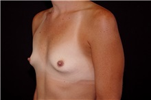 Breast Augmentation Before Photo by Landon Pryor, MD, FACS; Rockford, IL - Case 38160